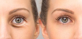 Mujer con bolsas en los ojos antes y después