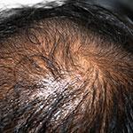 Ejemplo de Alopecia Seborreica