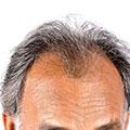 Ejemplo de alopecia androgenetica