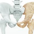 Ejemplo de osteoporosis