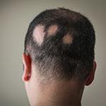 Ejemplo de Alopecia Areata