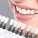 Productos para conseguir un blanqueamiento dental