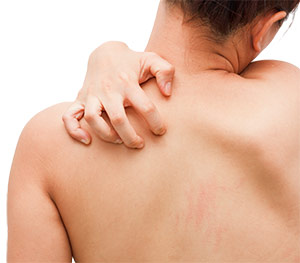 Mujer con infección en la espalda