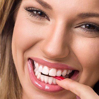 Consigue Un Blanqueamiento Dental Brillante