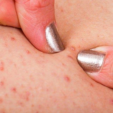 Tratamientos para la Foliculitis
