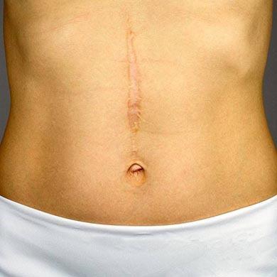Tipos de Cicatrices y Tratamientos