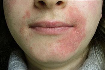 Mujer con problemas de rosacea alrededor de la boca