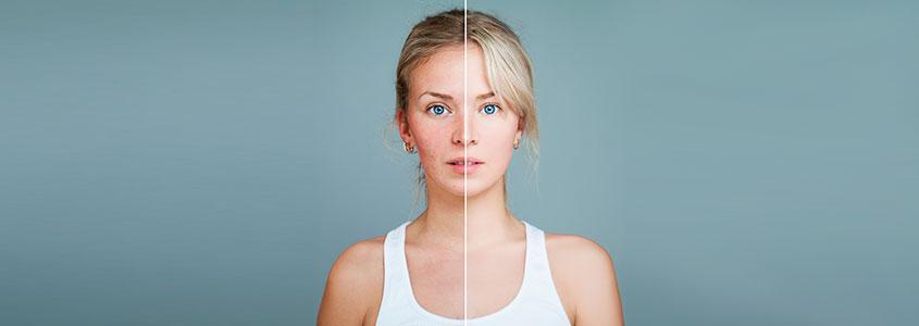 Mujer joven con problemas de piel vs mujer sin problemas de piel