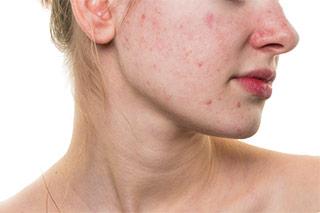 Hiperpigmentaicon postinflamatoria