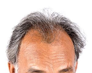 Cuero cabelludo de hombre con Alopecia