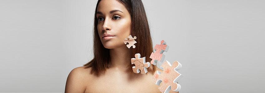 Rostro de mujer con piezas de puzzle al lado, simulando problemas de piel.