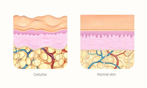 Grafico en color de un trozo de piel con celulitis