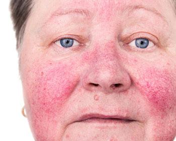 Mujer con problemas de rosacea en la nariz