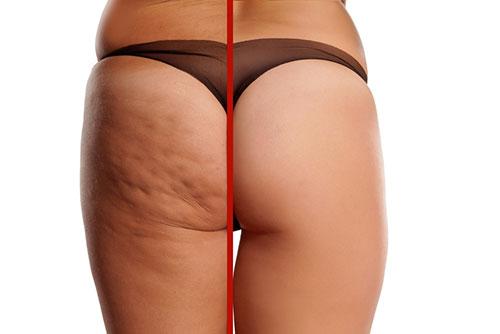 Ejemplo de celulitis en la parte trasera de una mujer