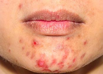 Mujer con problemas de rosacea alrededor de la boca tipo acne