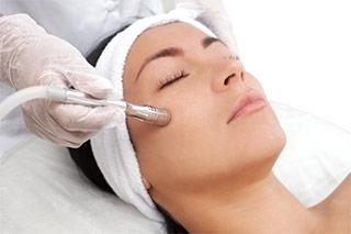 mujer eliminando hiperpigmentacion con laserterapia