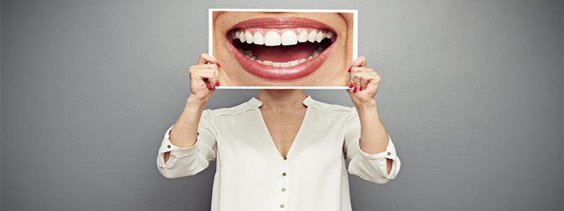 Mujer sujetando una fotografía de su dentadura después de usar un kit de blanqueamiento dental