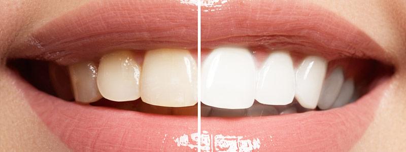 Antes y después de una sonrisa al usar un kit de blanqueamiento dental