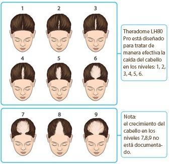 Imagen para ver los niveles de alopecia donde el casco Theradome es más efectivo